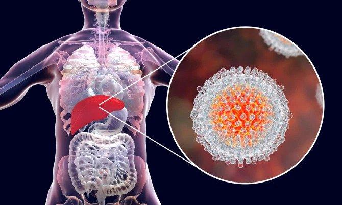 Ce este  hepatita? Ce înseamnă viral?